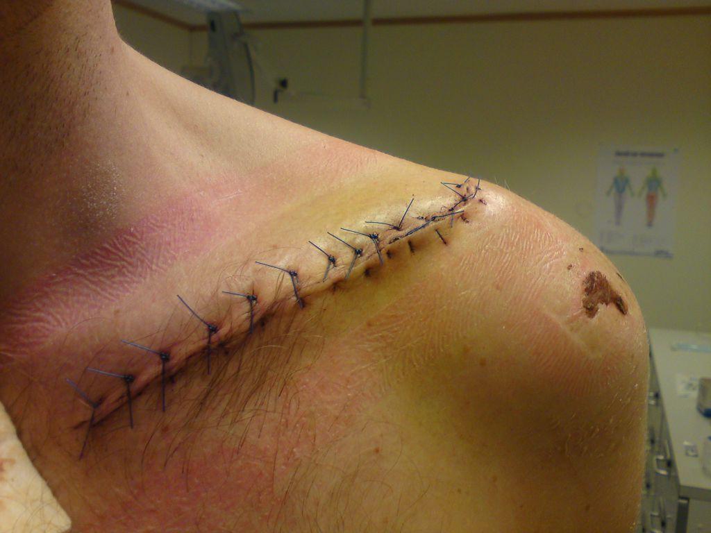Nils Andre skadet